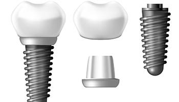 Illustration of a dental implant split into its different components