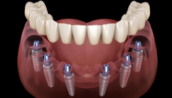 Animated dental implant supported dentures placement